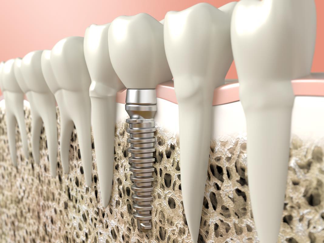 Dental Implants Olney, MD