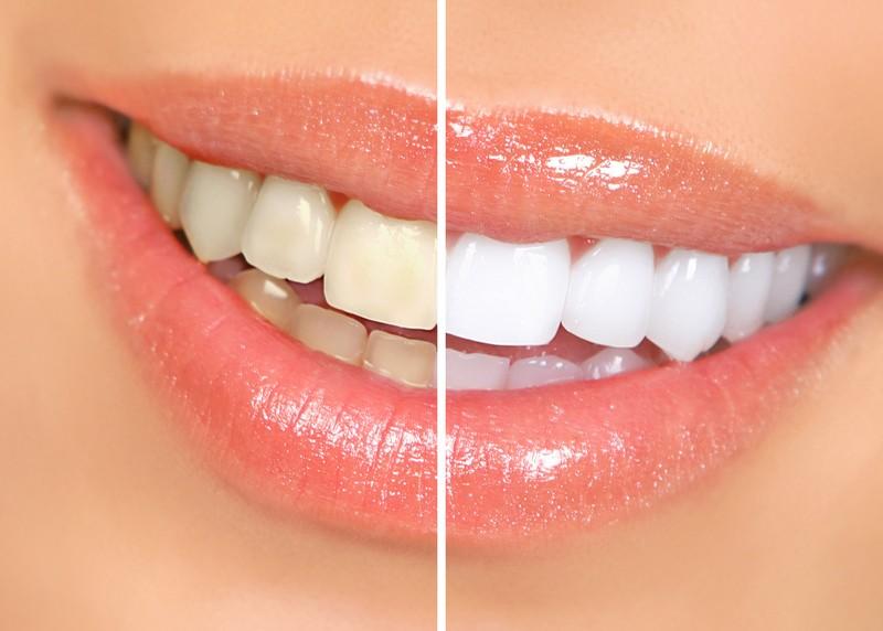 Teeth Whitening Olney, MD
